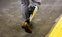 BionicM ajejich inovativní protéza